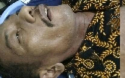 Berniat Lakukan Cek Kesehatan, Marlon Brando Meninggal di RSUD
