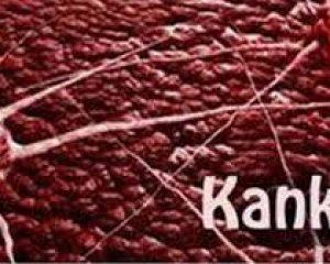 Juariah Kunjungi Yesika, Penderita Kanker Darah di Ganet